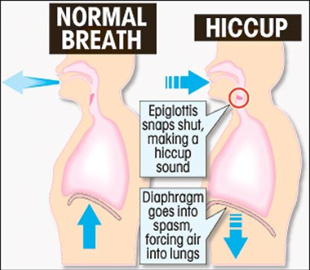 hiccups diagram They are finally gone